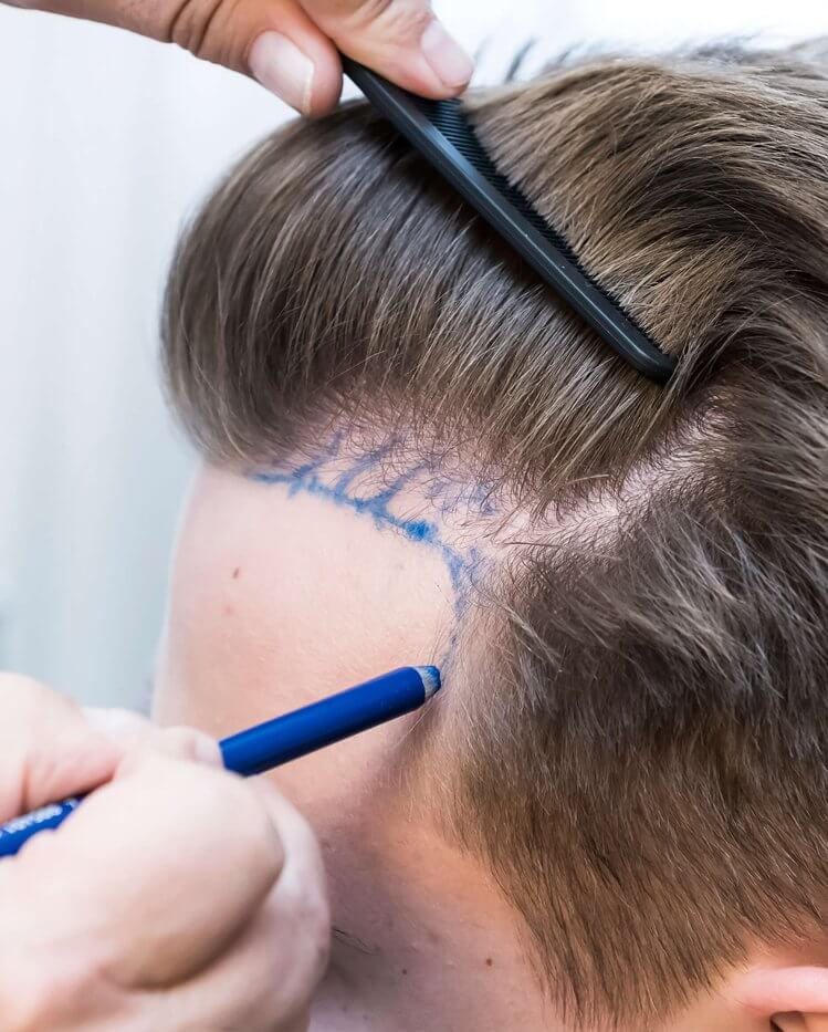Haartransplantation - Hairdoc Düsseldorf